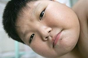 CHN: Children Attend Weight Lose Summer Camp